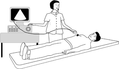 Echo Echocardiogram